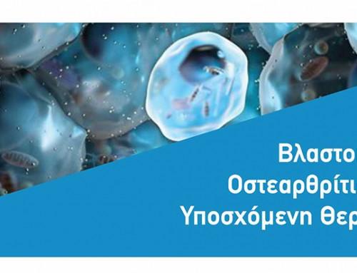 Βλαστοκύτταρα για την Οστεαρθριτιδα του Γόνατος. Υποσχόμενη θεραπεία η απάτη?